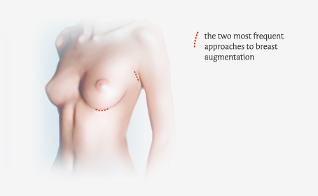 Illustration-Breast Augmentation