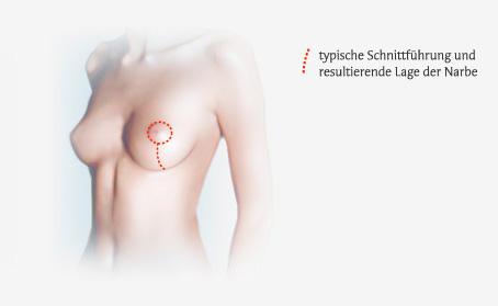 Illustration Bruststraffung - Erich-Lexer-Klinik Freiburg