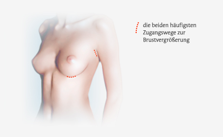 Illustration Brustvergrößerung / Mammaaugmentation Freiburg
